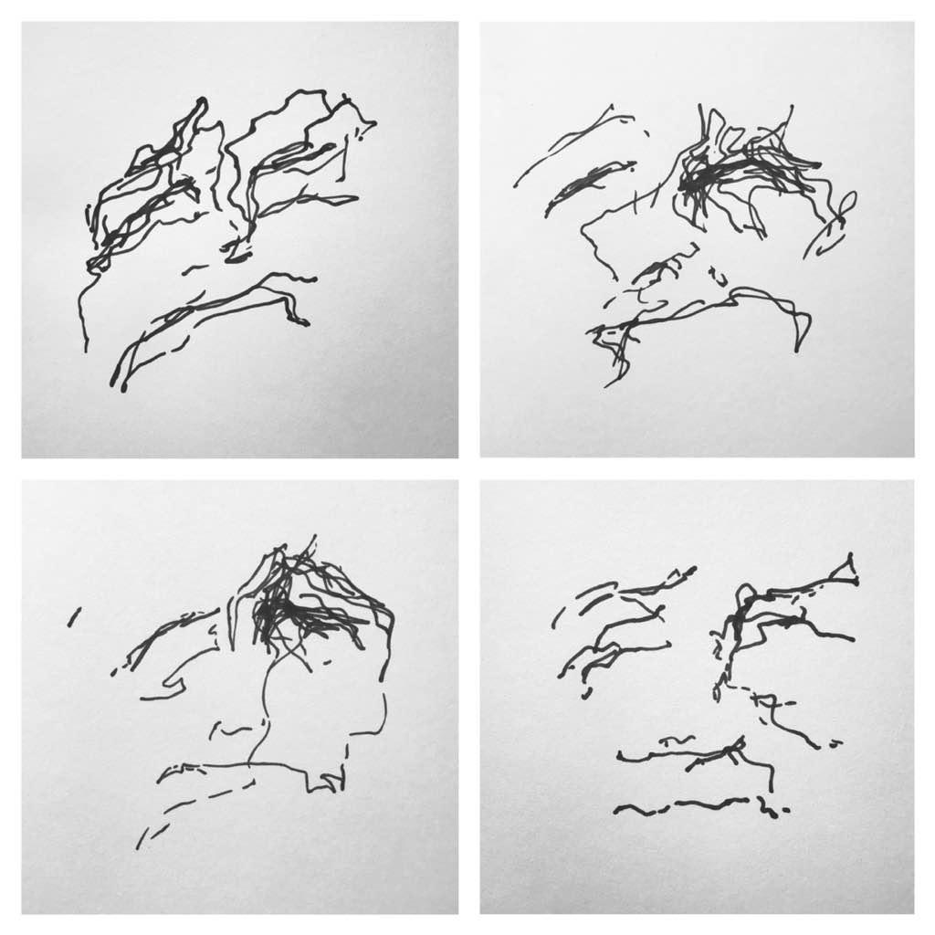 Skin Mapping – Stephanie Smith Artist on skin design, skin care lotion, skin avulsion injury, skin mole chart, skin craters, skin hamartoma, skin care face chart, skin lesion chart, skin printing, skin levels, skin drawing, skin nevus, skin lymphoma symptoms,